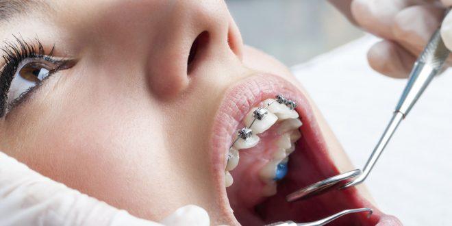I motivi per cui dobbiamo fare ortodonzia Blog Santé La