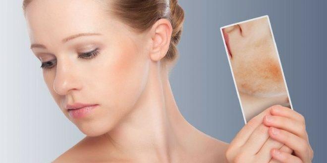 Lotta alla dermatite seborroica Health Blog La rivista di salute